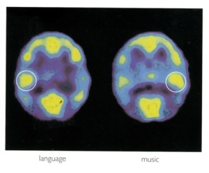 The left image is a brain scan while a subject listens to words, and the right image is a brain scan while a subject listens to music. The circled area is the auditory cortex. (Rita Carter, Mapping the Mind, pg. 147)